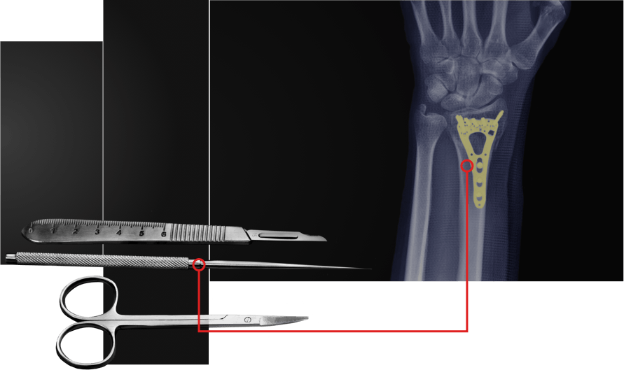 Medical instruments and an Xray of a machined part inside of an arm.
